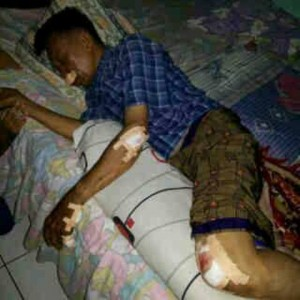 Wartawan Senior Poskota, Nasrul Koto terbaring lemas dengan luka disekujur tubuhnya karena mengalami kecelakaan lalulintas menghindar jalan rusak di Depok